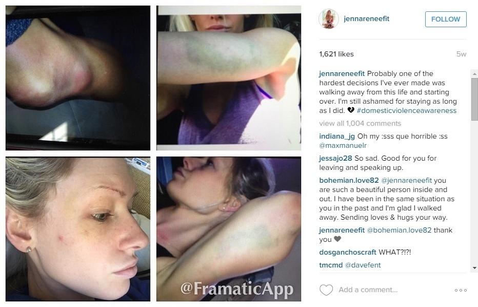 Namorada de Travis Browne apresenta machucados em rede social e acusa lutador de agressão