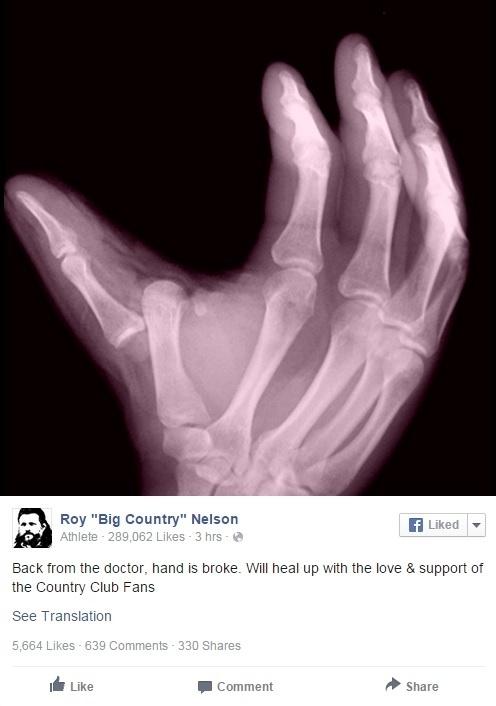 Roy Nelson posta foto da mão lesionada em rede social
