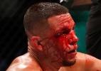 Vídeo revela confusão envolvendo Nate Diaz e fã de McGregor após UFC 202