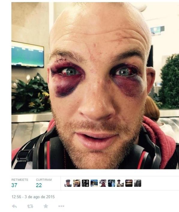 Patrick Cummins ficou com olhos bem machucados após vencer Rafael Feijão