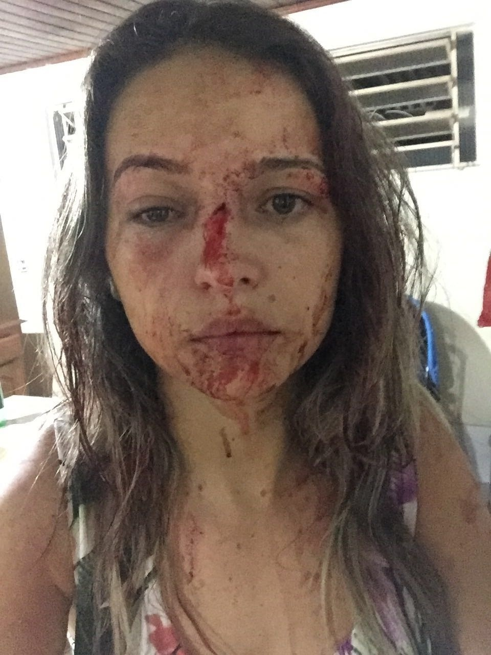 Pâmela Alves, que foi agredida pelo lutador de MMA Deroci Barbosa, no Acre