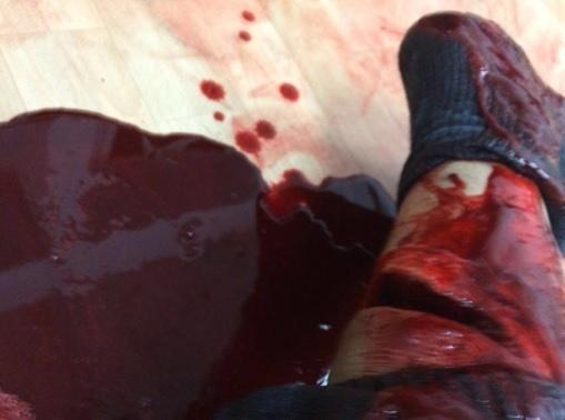 Lutador alemão de MMA sofreu grave corte na perna após ataque
