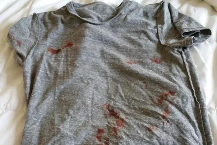 Will Brooks postou foto de sua camiseta suja de sangue após confusão com os irmãos Pittbull