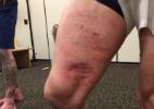 Lutador do UFC mostra perna 'carimbada' e agradece rival