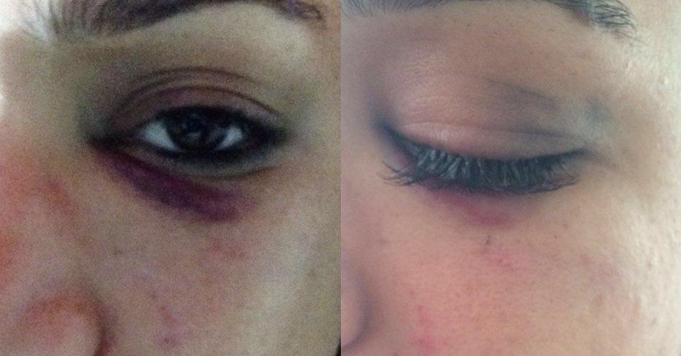 Detalhe do olho roxo de vítima da agressão por um lutador em Belém