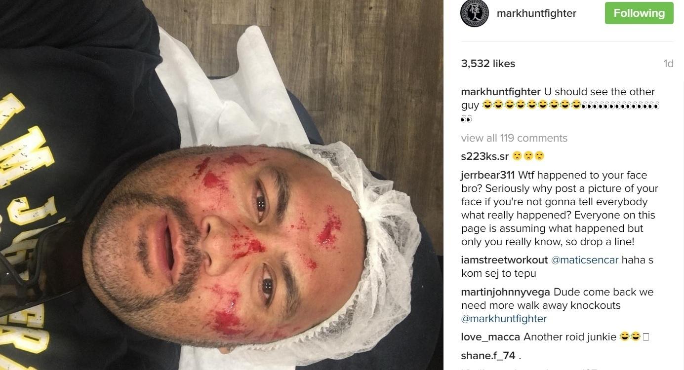 Mark Hunt apareceu com o rosto bastante machucado
