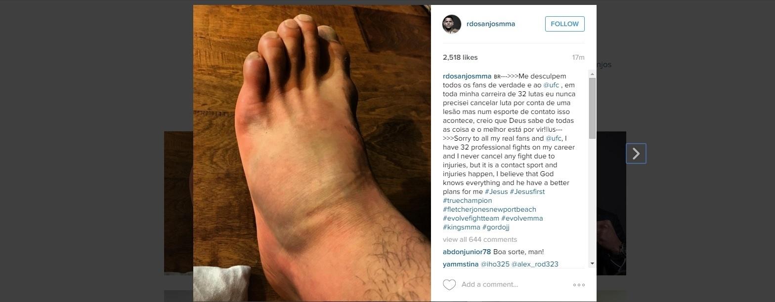 Rafael dos Anjos mostra o pé machucado após sofrer lesão
