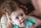 Cohen/Hospital Infantil de Boston