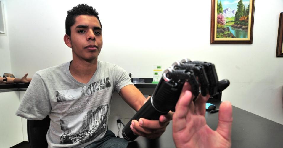 24.mai.2013 - O ciclista David Santos Sousa, 21, que perdeu o braço ao ser atropelado na Avenida Paulista, região central de São Paulo, iniciou o processo de implante de braço e mão biônicos, em Sorocaba (92 km de São Paulo). O equipamento, com tecnologia avançada, vai permitir que Sousa volte a desenhar e andar de bicicleta