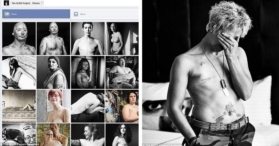 O Facebook está sendo acusado de ter apagado imagens que mostram cicatrizes de pacientes que passaram por mastectomia por causa do câncer de mama. As fotos, que fazem parte da iniciativa The SCAR Project, teriam sido excluídas por violarem as políticas de uso da rede social, que não permitem nudez. O responsável pelas fotos, David Jay, foi suspenso do Facebook durante um mês. Após um protesto realizado pelos membros do grupo, a rede social se desculpou pelo erro e afirmou que vai permitir as fotos das cicatrizes