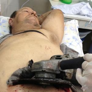 Steinmedc cortava lenha em casa, em Campina das Missões (RS), quando ocorreu o acidente