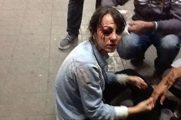 13.jun.2013 - Repórter do jornal Folha de S. Paulo foi atingida no olho por uma bala de borracha durante protesto contra aumento da tarifa do transporte coletivo em São Paulo