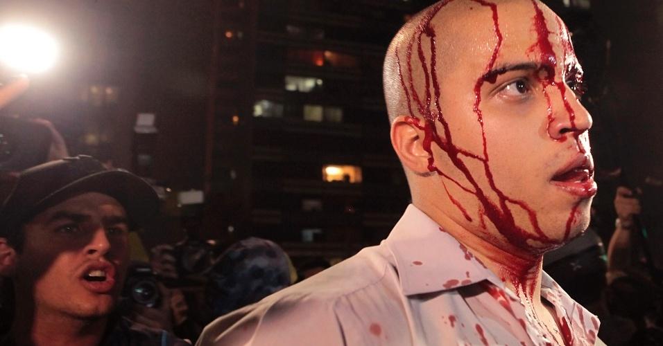 20.jun.2013 - Manifestante é ferido durante protesto na avenida Paulista, região central de São Paulo, na noite de quinta-feira (20)