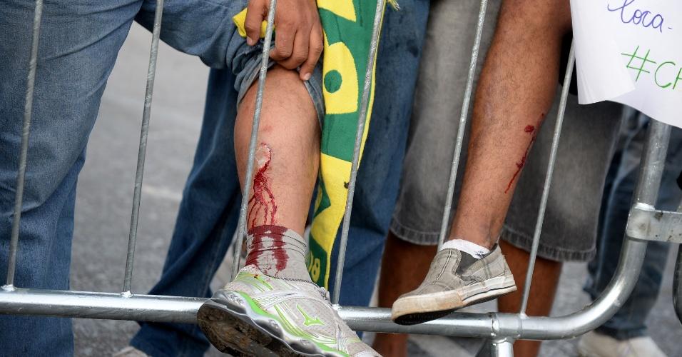 22.jun.2013 - Manifestantes mostram ferimentos após confronto com policiais militares na avenida do Contorno, em Belo Horizonte, neste sábado, nas proximidades do estádio Mineirão. Policiais militares e soldados da Força Nacional fizeram cordões de isolamento para impedir a aproximação dos manifestantes do estádio
