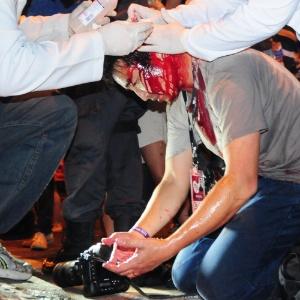 E sobre esses protestos populares - Página 15 23jul2013---um-fotografo-foi-ferido-durante-confronto-entre-manifestantes-e-policiais-na-rua-pinheiro-machado-proximo-ao-palacio-guanabara-sede-do-governo-do-estado-do-rio-de-janeiro-ao-final-de-um-1374582281899_300x300
