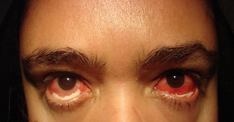 Doença rara faz mulher expelir membrana pelos olhos no interior de SP