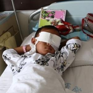 Após ter as córneas roubadas, o menino passou por cirurgia e está em recuperação