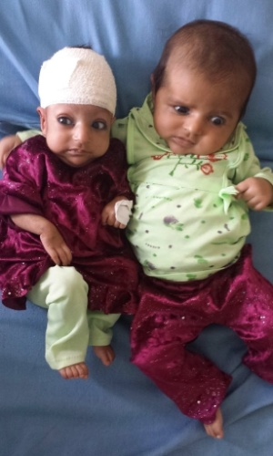 26.set.2013 - Em imagem de 18 de setembro divulgada nesta quinta-feira (26), a bebê de três meses Asree Gul (esquerda) e sua irmã gêmea, são fotografadas em um hospital em Jalamabad, no Afeganistão. Asree Gul (que significa nova flor) foi operada após nascer com uma espécie de segundo crânio acoplado à parte de trás da cabeça