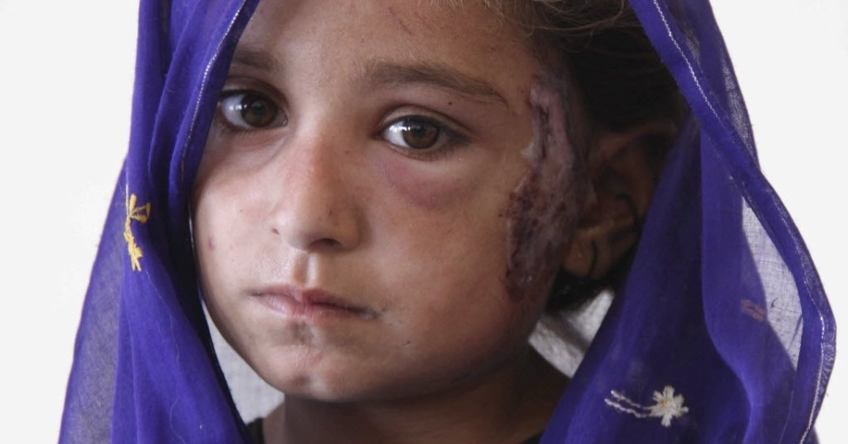 26.set.2013 - Menina ferida durante terremoto de magnitude 7,7 que atingiu o sudoeste do Paquistão na terça-feira (24) é fotografada em um hospital de Awaran. O número de mortos pelo terremoto chega a 349, segundo dados oficiais divulgados nesta quinta-feira (26)