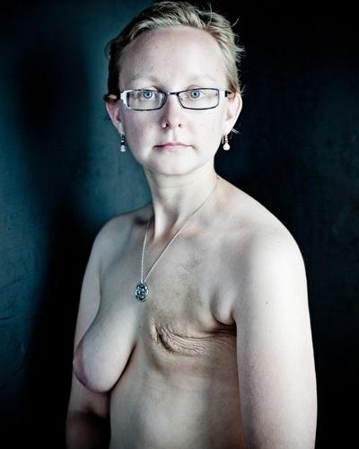 Admin. Рак груди у девушек. . Много фото этой болезни.