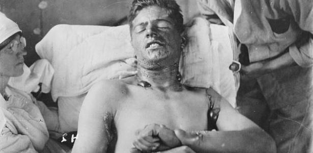 Em 22 de abril de 1915, perto da cidade belga de Ypres, a Alemanha usou 180 toneladas de ácido clorídrico contra as tropas inimigas