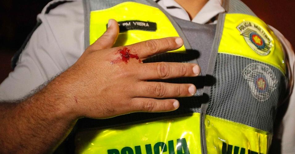 15.out.2013 - Policial militar mostra ferimento sofrido durante protesto contra a política educacional do governo de Geraldo Alckmin. A manifestação teve início no início da noite no largo da Batata, em Pinheiros. Manifestantes entraram em confronto com a polícia, que usou bombas de gás lacrimogêneo e efeito moral