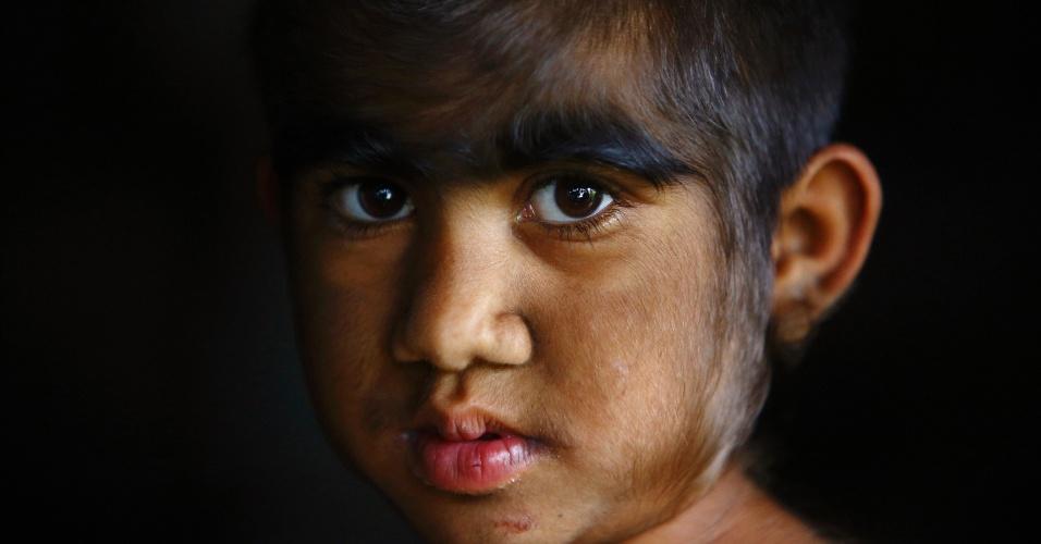 6.nov.2013 - Mandira Budhathoki, 7, é fotografada antes de passar por tratamento de remoção de pelos com laser em hospital de Katmandu, no Nepal
