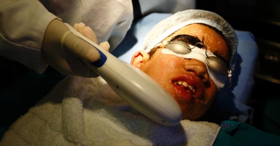 """6.nov.2013 - Niraj Budhathoki, 12, passa por tratamento de remoção de pelos a laser no hospital Dhulikhe, na periferia de Katmandu, no Nepal. Ele é portador de Hypertrichosis Lanuginosa, uma doença rara que causa crescimento excessivo de pelos no corpo, também conhecida como """"síndrome de lobisomem"""""""
