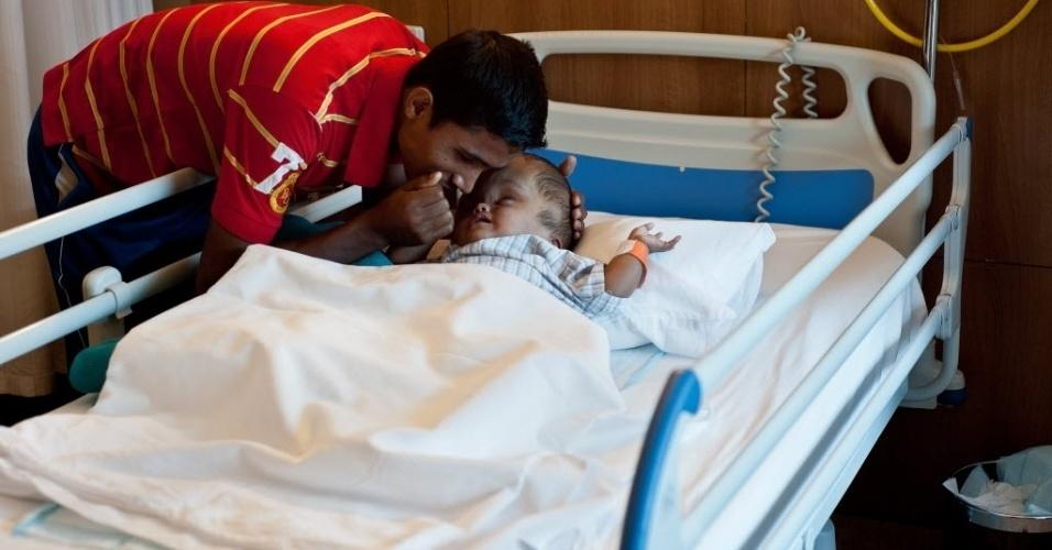 29.nov.2013 - A paciente indiana Roona Begum, de vinte e dois meses de vida, é consolada por seu pai, Abdul Rahman, enquanto sua mãe  Fatima Khatun observa, antes de passar por cirurgia em um hospital em Gurgaon, nos arredores de Nova Déli, em 29 de Novembro de 2013. A situação de Roona lhe trouxe simpatia internacional após passar por vários procedimentos cirúrgicos para salvar sua vida. Em um deles, os médicos drenaram o líquido de sua cabeça e reduziram drasticamente o tamanho de seu crânio