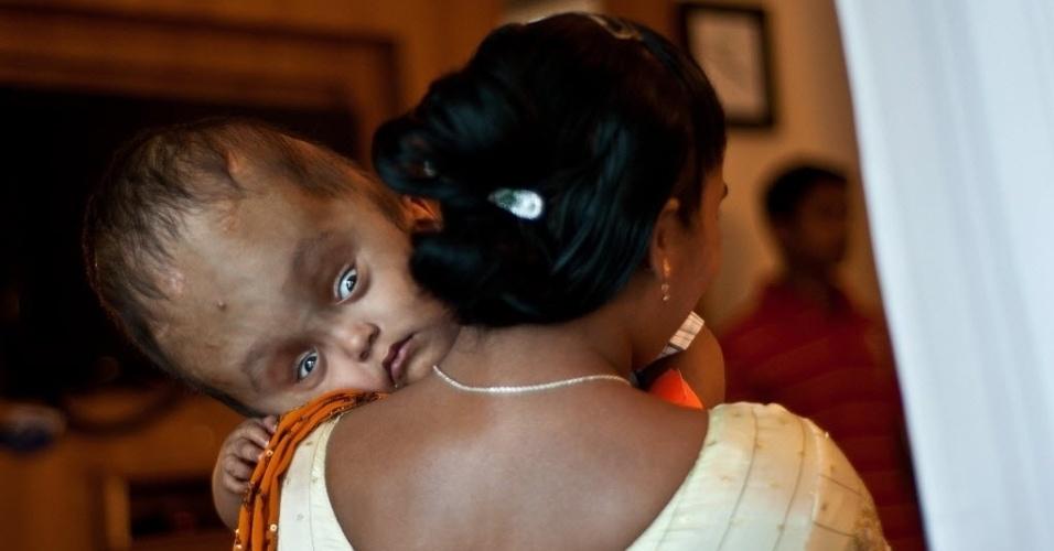 29.nov.2013: A paciente indiana Roona Begum, de vinte e dois meses de vida, é carregada por sua mãe, Fatima Khatun antes de passar por mais uma cirurgia em um hospital em Gurgaon, nos arredores de Nova Déli, em 29 de Novembro de 2013. A situação de menina, que tem hidrocefalia, lhe trouxe simpatia internacional após passar por vários procedimentos cirúrgicos para salvar sua vida