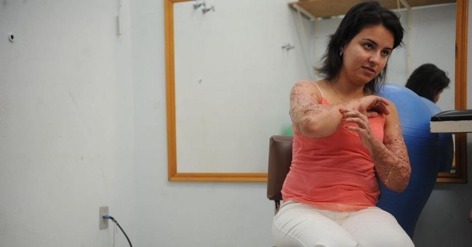 16.jan.2014 - A estudante de terapia ocupacional, Kelen Ferreira, que estava na Kiss com duas amigas, teve 18% do corpo queimado e usa uma prótese na perna direita