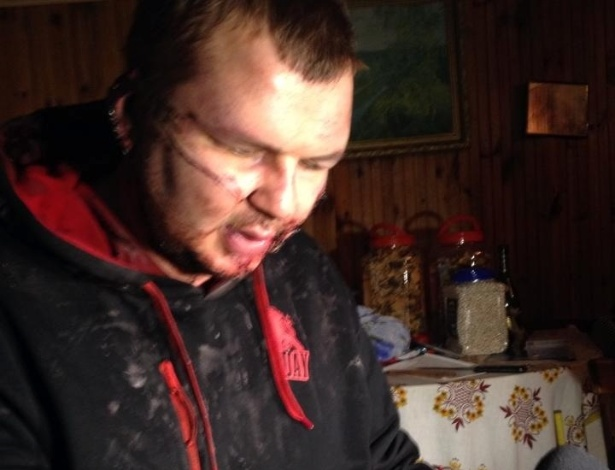 Dmytro Bulatov, 35, reapareceu bastante machucado após ter ficado uma semana sumido