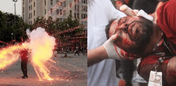 Cinegrafista foi ferido na cabeça por um artefato explosivo e perdeu parte da orelha