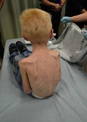Médicos do Hospital Infantil do Texas examinam criança desnutrida encontrada por policiais trancada dentro de um armário em uma casa no Texas (EUA)