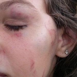 Estudante de 15 anos foi espancada dentro da sala de aula em Limeira (SP)