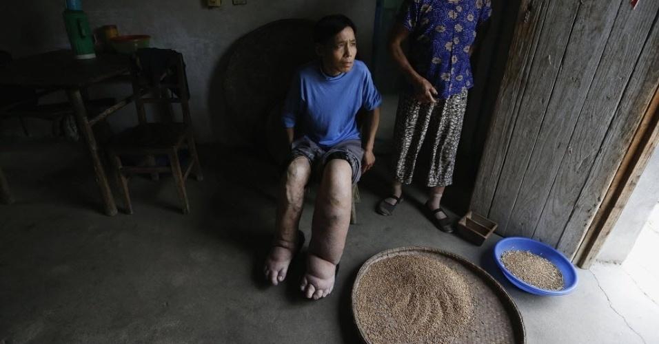 29.mai.2014 - Hu Famiao (centro), um agricultor de 50, cujos pés estavam inchados devido a uma doença desconhecida, senta ao lado de outros pacientes em uma clínica na aldeia Dougang, província de Anhui, na China. Os pés de Hu começaram a inchar aos 15 anos, segundo a família, ele procurou ajuda em diversos hospitais, mas ninguém soube dizer a razão do sintoma