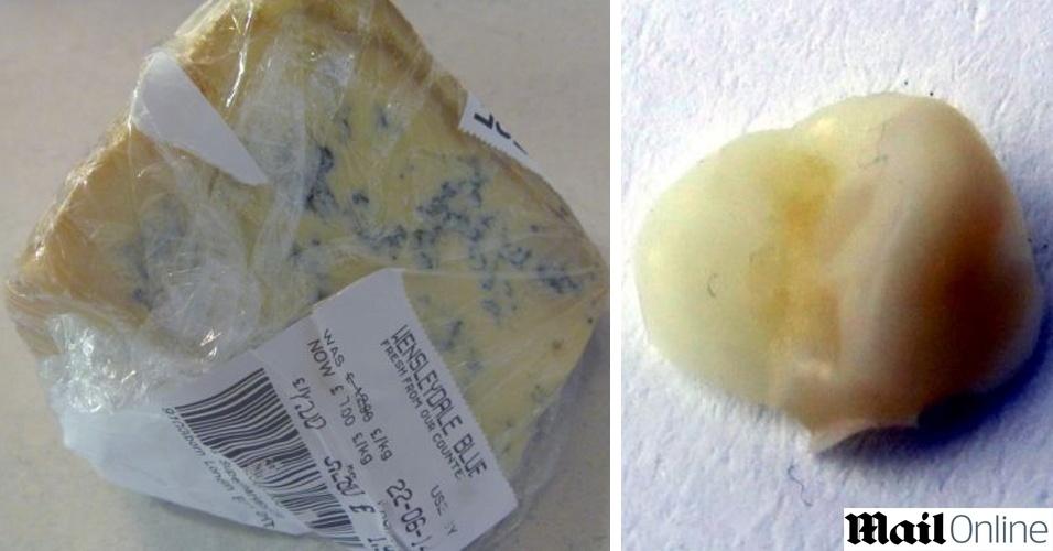 30,jun.2014 - Jane Betts, 42, comprou um queijo da marca Wensleydale Jervaulx Blue, que serviu como tira-gosto após o jantar. Logo ao começar a mastigar um pedaço do queijo, achou o dente e constatou que ele não era seu