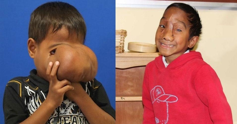 3.jul.2014 - Cirurgiões australianos removeram tumor do rosto de Jhonny Lameon, 7, um menino das Filipinas. A imagem, divulgada nesta quinta-feira (3), mostra o resultado do procedimento. Antes da cirurgia, Jhonny precisava levantar o tumor para poder comer e beber. O garoto sofria de uma encefalocele fronto-nasal grave - um defeito do tubo neural, que fez com que os sacos membranosos se expandissem próximo dos olhos e cobrissem o rosto. A cirurgia foi realizada no hospital Monash Children's Hospital, em Merlbourne, na Austrália