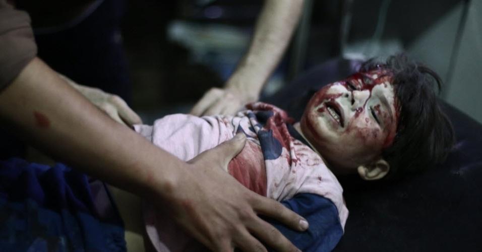 5.ago.2014 - Menino sírio recebe atendimento após ser ferido em um suposto ataque aéreo do Exército em Douma, cidade controlada pelos rebeldes, perto de Damasco, nesta terça-feira (5). Douma é um bastião rebelde que tem sido sufocado pelo cerco das forças militares do governo há mais de um ano