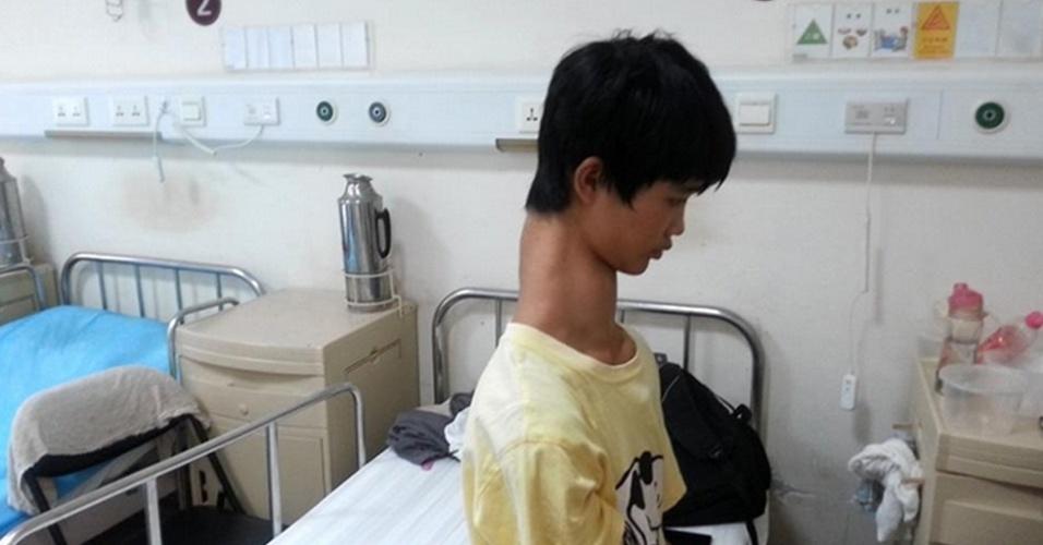 26.ago.2014 - Fu Wengui, 15, sofre de uma condição rara. Ele possui 10 vértebras em seu pescoço, três a mais do que a maioria dos seres humanos