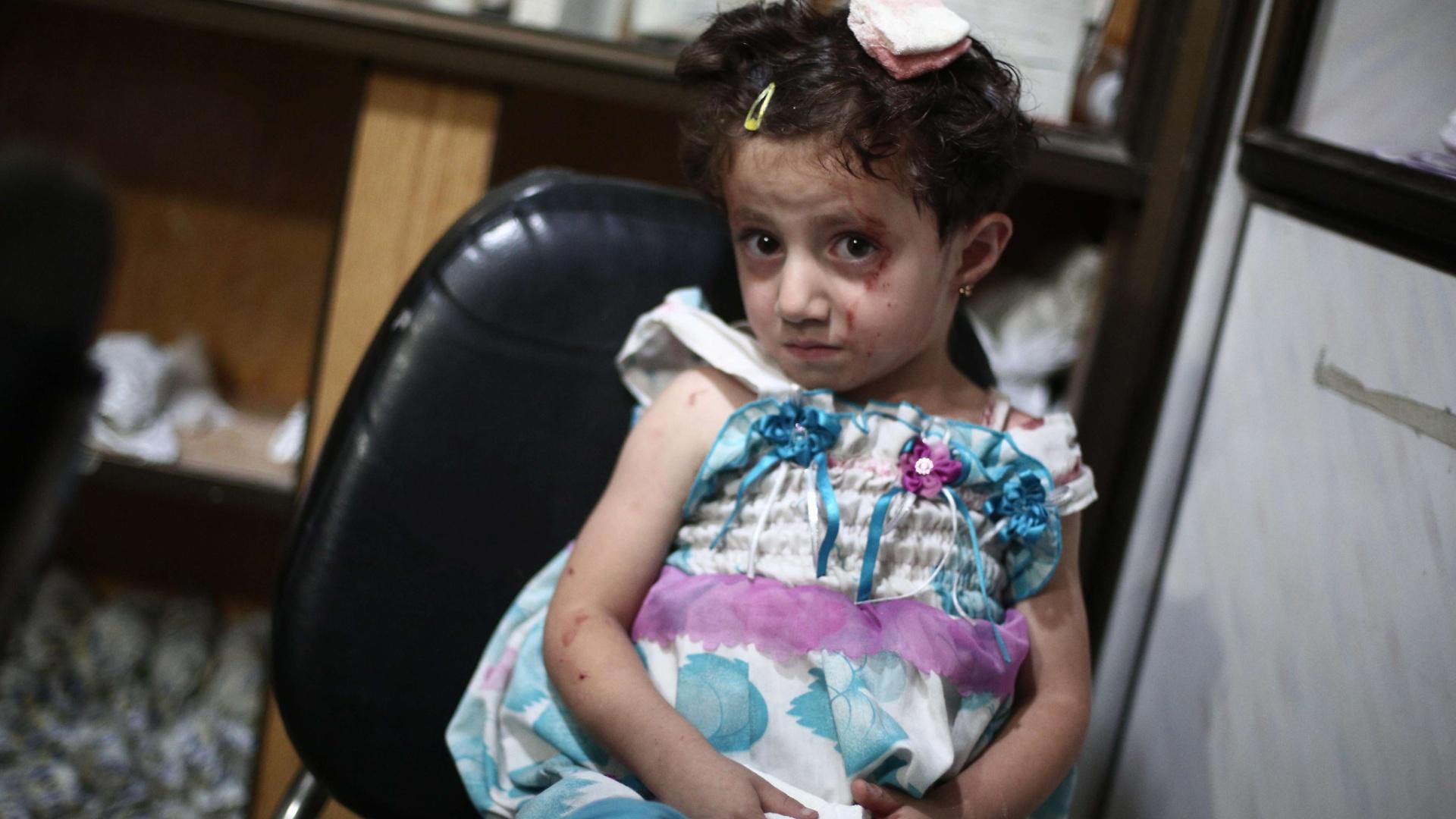 9.set.2014 - Única sobrevivente de sua família, menina síria ferida aguarda tratamento em um hospital improvisado em Douma, cidade controlada pelos rebeldes que fica perto de Damasco. A cidade está sob cerco do exército sírio há mais de um ano. Ataques aéreos do governo sírio mataram mais de 60 pessoas e feriram outras dezenas nos últimos dois dias