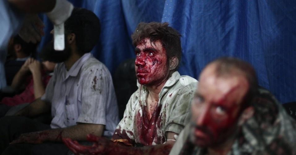 9.set.2014 - Sírios feridos aguardam atendimento em um hospital improvisado na cidade controlada pelos rebeldes de Douma, perto de Damasco, nesta terça-feira (9). Ataques aéreos relatados por forças do governo sírio mataram mais de dez pessoas e deixaram dezenas de feridos. O conflito na Síria já matou mais de 170 mil pessoas, e forçou quase metade da população a fugir de suas casas