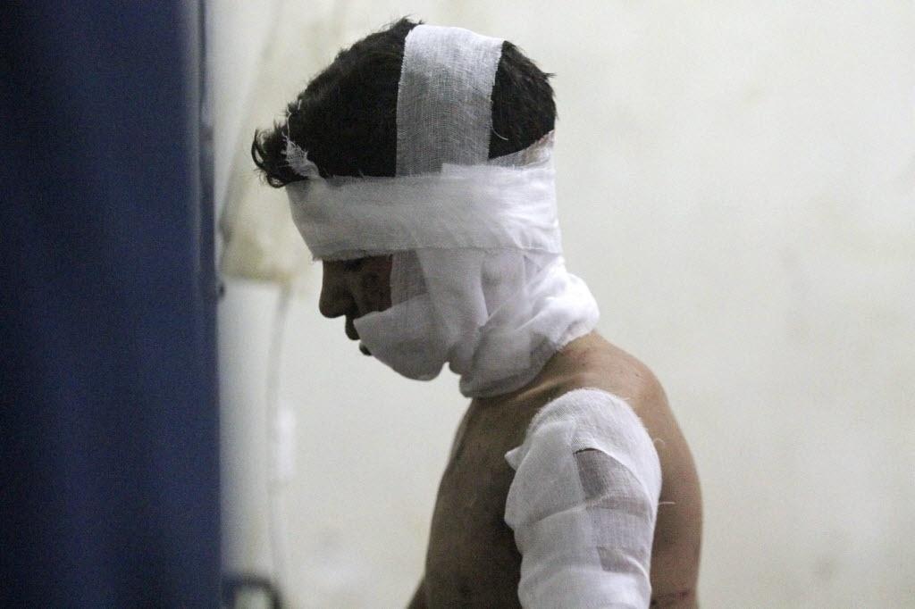 14.set.2014 - Um garoto ferido descansa em um hospital de campo após dois ataques aéreos que, segundo ativistas, foram realizados por forças leais ao presidente da Síria, Bashar al-Assad, em Douma, no leste de al-Ghouta, próximo a Damasco, neste domingo (14)