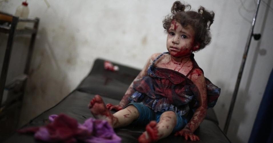 24.set.2014 - Menina machucada é tratada em um hospital improvisado no bastião rebelde em Douma, a nordeste da capital da Síria, Damasco, nesta quarta-feira (24), após ataques aéreos relatados por forças do governo