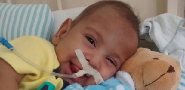 Com apenas seis meses de vida, o pequeno Guilherme já passou por duas cirurgias