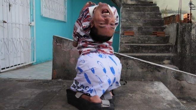 19.dez.2014 - Cláudio nasceu com artrogripose, um problema raro que faz com que seus ossos se fundam e ganhem um formato curvo e contraído