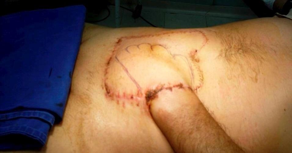 """20.jan.2015 - Após o acidente, a mão de Ângelo foi costurada à barriga. O procedimento foi recomendado pelo cirurgião plástico Leonardo Canhestro, de Belo Horizonte (MG). """"Nestes casos, normalmente, a indicação é de amputação no meio do antebraço [entre o cotovelo e o punho]. Esta cirurgia foi idealizada em menos de 1 hora"""", disse"""