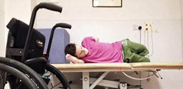 Aos 34 anos de idade, o britânico Alex perdeu as pernas, os braços, os lábios e o nariz
