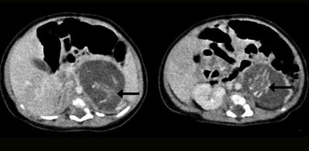 Ultrassom mostra a espinha dorsal dos dois fetos, encontrados no ventre de um bebê recém-nascido, em Hong Kong, em 2010