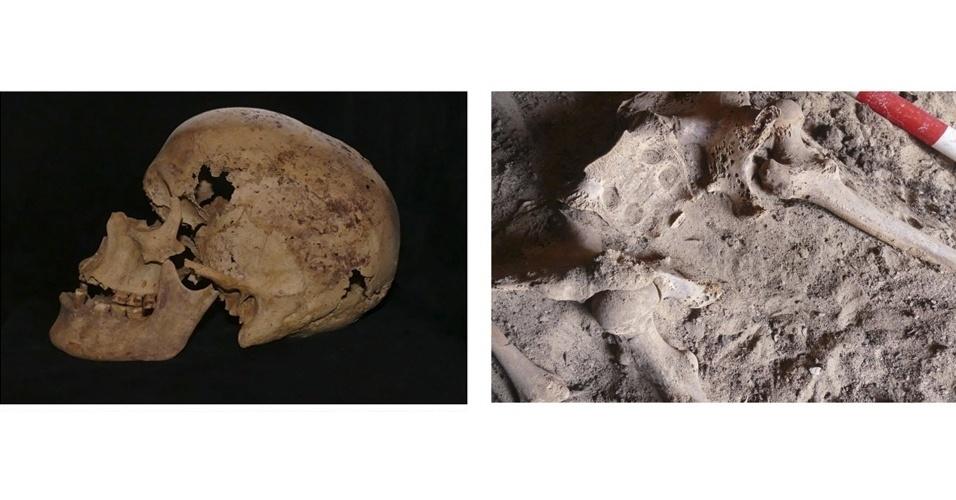 24.mar.2015 - Em restos mortais de uma mulher que datam do final da 6ª dinastia faraônica, no ano 2.200 a.C., cientistas descobriram o câncer de mama mais antigo do mundo que se tem registro. A foto foi cedida pelo Ministério de Antiguidades do Egito